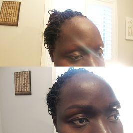 black woman showing her eyebrow after treatment