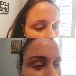 before and after view of woman eyebrows