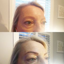 woman before and after eyebrow image