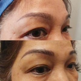 Microblading before and after by Confident Brows